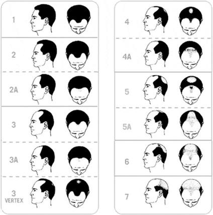 saç dökülme evreleri